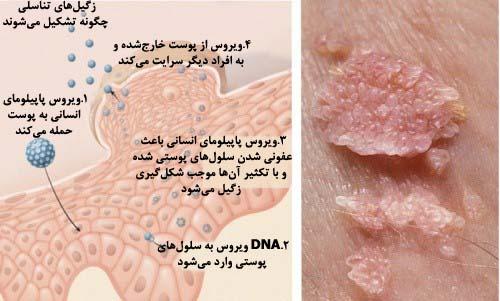 نتیجه تصویری برای عفونت ویروس پاپیلوم انسانی